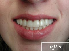 thumb-veneers-case1-after