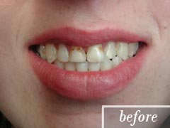 thumb-veneers-case1-before