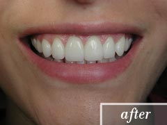 thumb-veneers-case2-after