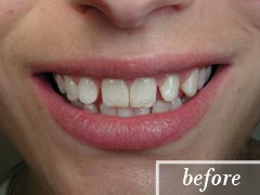 thumb-veneers-case2-before