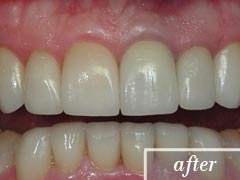 thumb-veneers-case3-after1