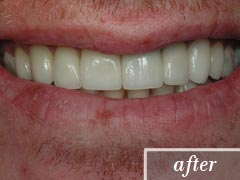thumb-veneers-case3-after2