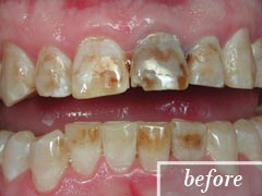 thumb-veneers-case3-before1