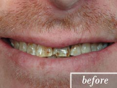 thumb-veneers-case3-before2