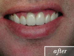 thumb-veneers-case4-after1