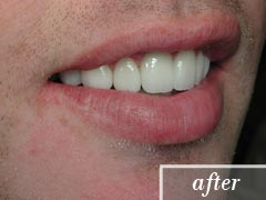 thumb-veneers-case4-after2