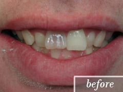 thumb-veneers-case4-before1