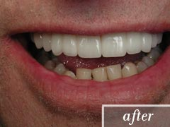 thumb-veneers-case5-after