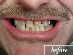 thumb-veneers-case5-before