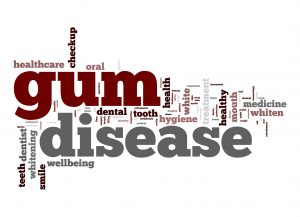 Gum Disease And The Point Of No Return