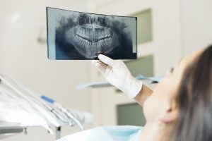Is Teeth-Grinding Damaging Your Smile?