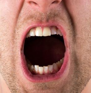 Screaming Jaw Pain