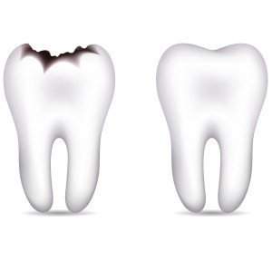 treat your cavity to a tooth-colored filling