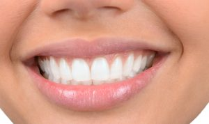 What Is Full-Mouth Rehabilitation?