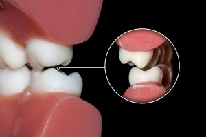 Damage Caused By Grinding Teeth