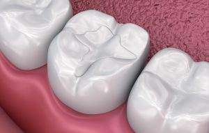 Why Does My Tooth In A Filling?